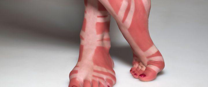 How to avoid sunburn